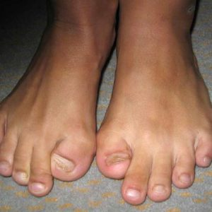 Toes of person with FOP
